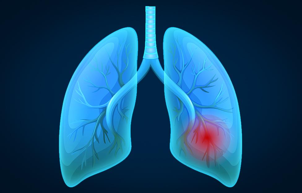 Lung-Cancer-cozumel.jpg